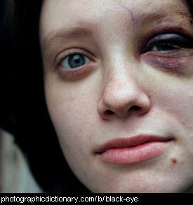 Photo of a black eye