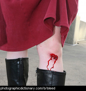 Photo of a bleeding knee