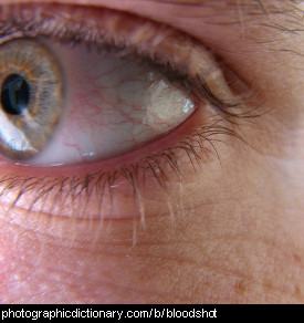 Photo of bloodshot eyes.