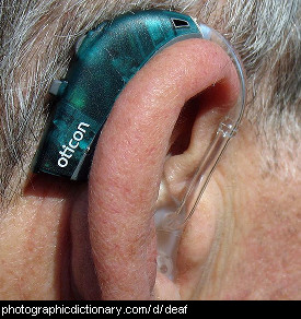 Photo of a hearing aid