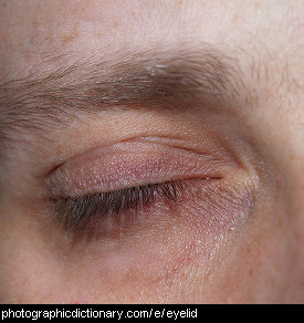 Photo of an eyelid