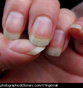 Photo of fingernails
