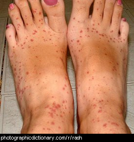 Photo of some feet with a rash