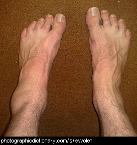 Photo of a man with a swollen ankle