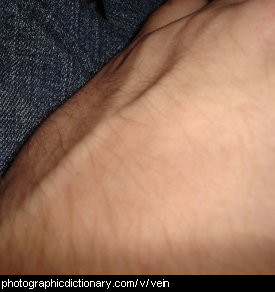 Photo of veins on an arm