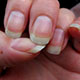 Photo of a womans fingernails